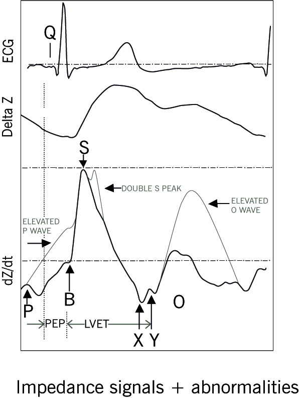 impedance signals abnormalities